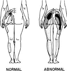 Pain Referral Patterns Cool Pain Referral Patterns For Asymptomatic Normal And Sy Openi