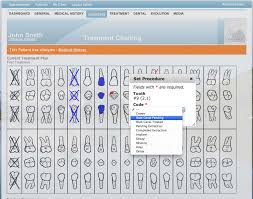 Dental Software Features Simple Dental