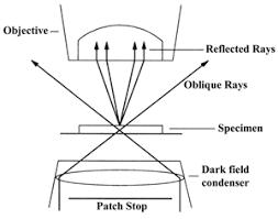 dark field microscopy dark field