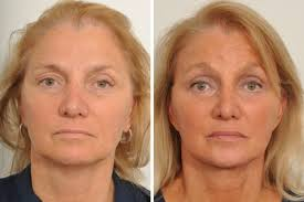 lip augmentation dr benjamin paul