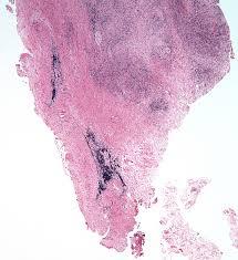 hematoxylin and eosin stain 20x