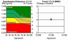 Bone Density Scan Results Chart 50 Problem Solving Bone Density Results Chart