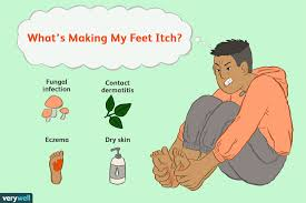 Skin Conditions That Make Your Feet Itch