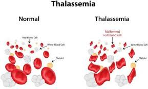 Thalassemia Causes Symptoms And Treatment