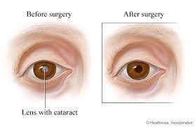 cataract surgery kuwait specialized