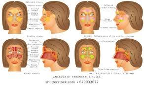 Sinus Chart Nasal Anatomy Stock Illustrations Images Vectors