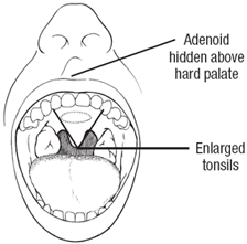 Tonsils And The Adenoid Quincy Ma Quincy Pediatric