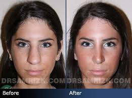 Image result for revision procedure  for nose job