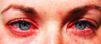 Best Allergy Treatment in Ayurveda, Yoga, Homeopathy and Home Remedies