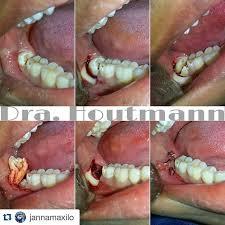 extracción de tercer molar retenido impacted third