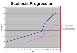 Scoliosis Degrees Of Curvature Chart Scoliosis In Children Hudson Valley Scoliosis