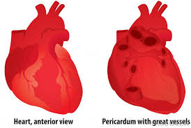 pericardial sac what is the pericardial sac with pictures