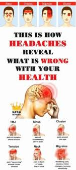 Cluster Headache Location Chart This Is How Headaches Reveal What Is Wrong With Your Health