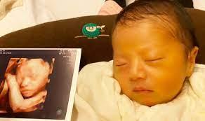 赤ちゃん 4d エコー