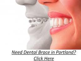 Braces Quotes Portland Your Answer Here Orthodontist Portland Unique Braces Quotes