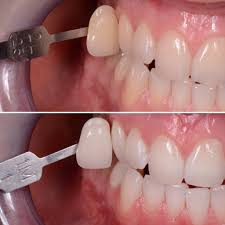 How To Light A Match On Your Teeth Everything You Need To Know Before You Do Teeth Whitening