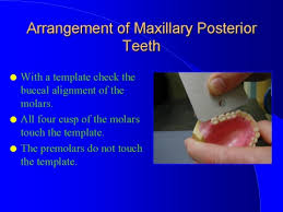 teeth setting img014 jpg