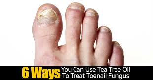 6 ways you can use tea tree oil to treat toenail fungus