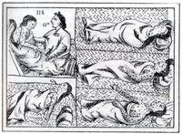 The columbian exchange essay SlidePlayer A drawing shows five depictions of an Aztec smallpox victim  The victim   who is