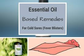 11 best essential oils diy remes for cold sores
