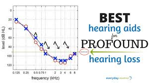 5 Best Hearing Aids For Profound Hearing Loss In 2019