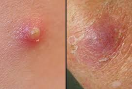 boils pictures causes symptoms and