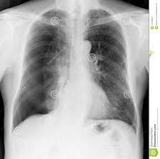 Pneumothorax X Ray X Ray Of The Chest Of A Man With A Pneumothorax Stock Image