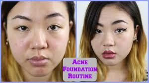 everyday acne foundation routine lightweight not cakey