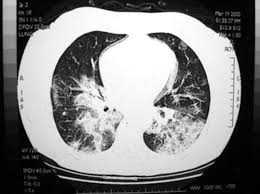 16 the high infectivity of this viral illness is highlighted by the fact that 138 patients (mostly healthcare. Severe Acute Respiratory Syndrome Sars Epidemiology And Clinical Features Postgraduate Medical Journal