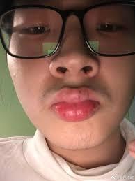 my lips swollen trombonechat