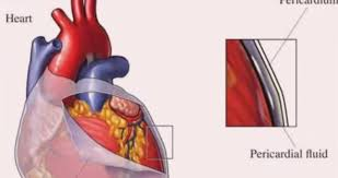 Pericardial Sac Function Fluid Definition Location Med Mum