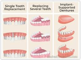 dental implants in mexico low cost