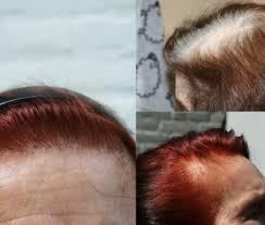 grijs haar verven met henna