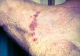 Scabies: Images, symptoms, and treatments