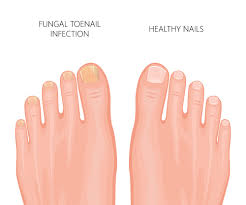 The Most Effective Fungal Nail Treatment in Australia