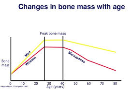 Osteoporosis Womens Health Royal College Of Nursing