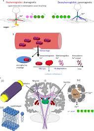 Biomedical Magnetic Materials A Diamagnetic Hemoglobin And