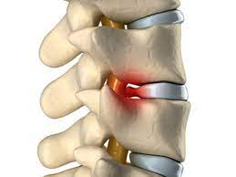 relieving pain from herniated discs