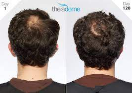Theradome Releases Results of Consumer Study That Shows Hair Growth Among  Men