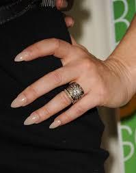 Rash Under Wedding Ring Wedding Ring Rash A Real Life Seven Year