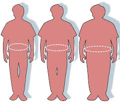 Ожирение Википедия