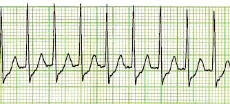 Telemetry Heart Rate Chart Supraventricular Tachycardia Wikipedia
