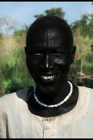 melanistic vs albino humans. Fine Humans People From Ethiopia And Other Areas Of East Africa On The Whole Tend To  Have VERY Dark Skin In My Experience The Amount Pigment Serves Them A Valuable  For Melanistic Vs Albino Humans