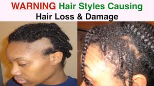 Baldness Hair Style hairstyles causing hair loss in women edges & nape traction 2564 by wearticles.com