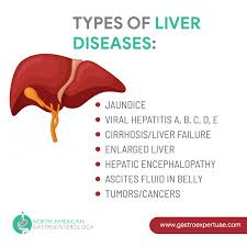Liver Tumor Size Chart Liver Tumor Symptoms And Risk Factors Posts By North