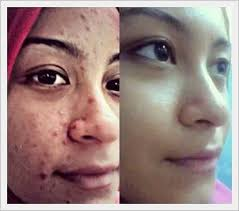 Double, Triple, Stemcell - Phytoscience.co.id | Stem cells, Beautiful skin,  Health and beauty