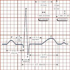Ecg Chart Examples Heart Health Program Learn How To Reverse Heart Disease
