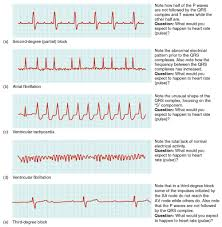 Types Of Arrhythmia Chart 49 Inquisitive Ekg Arrhythmia Chart