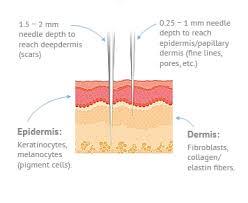 Dermaroller Micro Needling