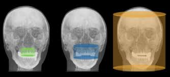 Principles Of Cbct Cone Beam Computed Tomography Cbct